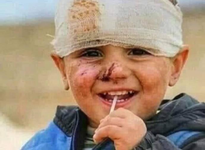 Civili colpiti dagli azeri